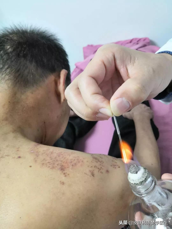 带状疱疹后遗神经痛用中药加火针治疗效果佳 - 第1张  | 网络大咖