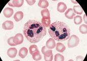 G-CSF:肿瘤化疗中的升白药,衡量标准是 ANC 指标