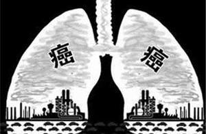 男子咳嗽咳痰两个月,查出肺癌!如何早期发现肺癌?