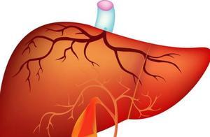 体检查出了肝血管瘤,关于这个病的六问六答,你想知道的都在这里