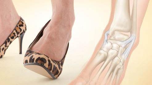 踝关节扭伤后穿高跟鞋疼 为什么女性穿高跟鞋时,容易发生踝关节扭伤