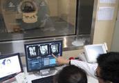 拍X光和CT的辐射,对人体伤害到底有多大?影像科医生说了实话