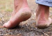 """脚后跟经常""""干裂""""疼痛?可能和4个原因有关,做好3点有利于预防"""