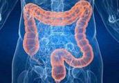 放屁多是肠胃健康问题吗?消化道医生:未必,还有可能是这4种
