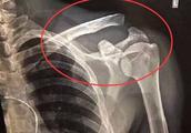 名记称武磊中韩战是常规轮休 球王本尊:肩锁关节脱位,韧带断裂