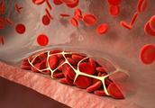 40岁以上的人,别再吃四种食物了,对血管的伤害真的很大