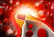 """高血脂易引发""""动脉硬化"""",身体若有4个表现,多半是血脂超标了"""