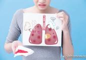 肺部查出结节怎么办?医生提醒:超过10mm就要做手术