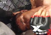 老毛病又犯了,中国拳王一出国门就软被暴打昏迷,裁判紧急抢救